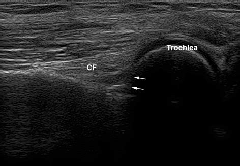 Pitfalls in Musculoskeletal Ultrasound | Radiology Key