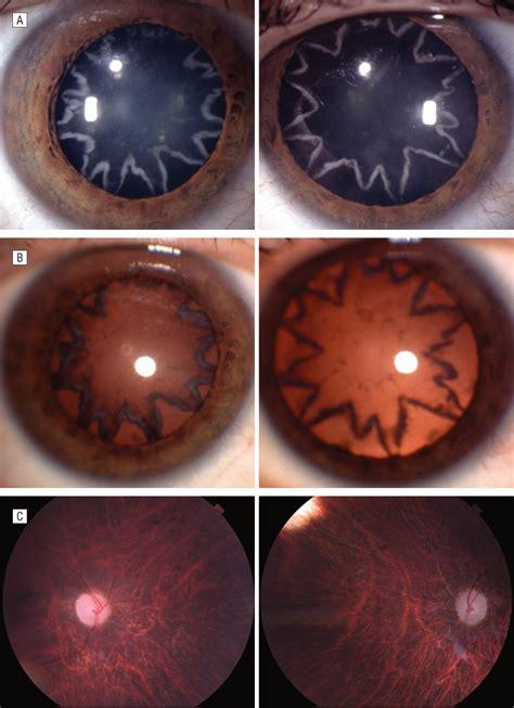 visualization  bilateral cataracts  optic neuropathy