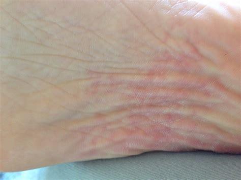 kann das sein siehe foto fuesse dermatologie