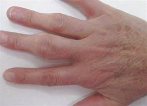 Бородавка на пальце руки как избавиться народные методы лечения