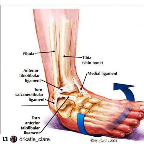 ANKLE INJURIES 🚶🏻 . Have you ever... - Orchard Health ...