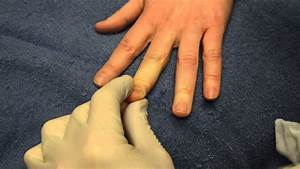 Папилломы лечение электрокоагуляция