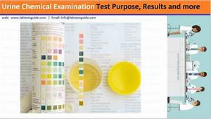 Urine Dipstick Tests Purpose  Results And More