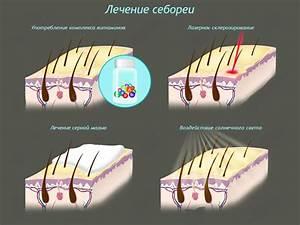 Отзывы о цинковой мази при псориазе