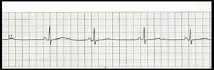 Float Nurse: EKG Rhythm Strip Quiz 157