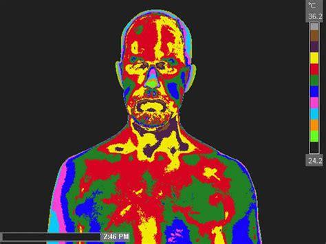Neuro-Musculoskeletal | Atlas Categories | American ...