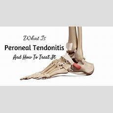 What Is Peroneal Tendonitis? How To Treat It? We Know The Answer