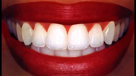Best Tooth Whitening by Laser Teeth Whitening Reviews Best Teeth Whiteners