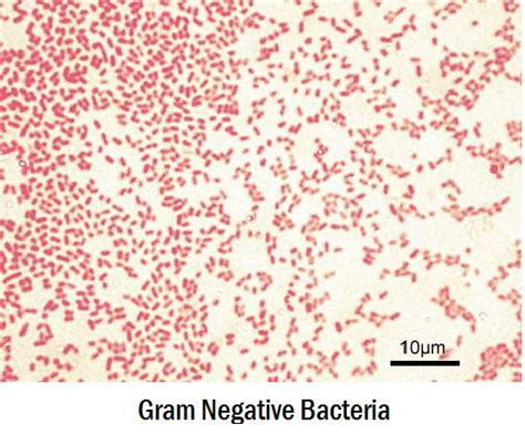 what color is gram negative lab practical 1 microbiology