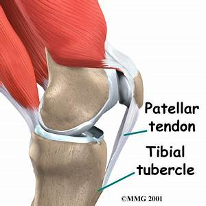 Patellar Tendon Graft Reconstruction of the ACL ...
