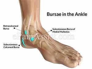 Ankle Joint Bursitis