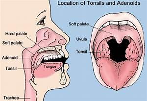 Adenoids Diagram