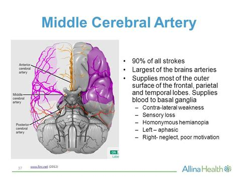 Image Result For Middle Cerebral Artery Stroke Symptoms. Droop Signs Of Stroke. Strokeawarenessmonth Signs. Usefulness Signs. Head Office Signs. Fire Exit Safety Signs. Stroke Test Signs. Batman Vs Superman Signs Of Stroke. February 6 Signs Of Stroke