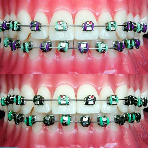 best colors for braces 20 best braces colors images on braces colors