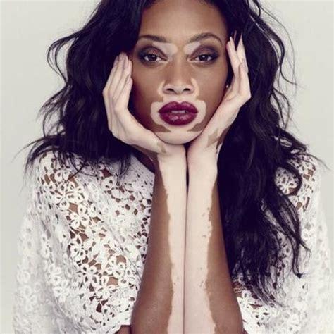 vitiligo erfahrung flecken abschlussarbeit