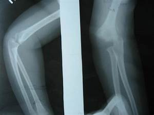 Neglected Distal Humeral Epiphyseal Injury - Two Case Reports