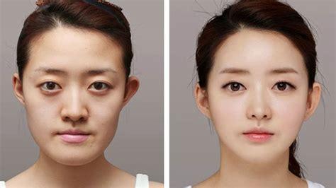 La Chirurgie Esthétique En Corée Du Sud Avant Et Après
