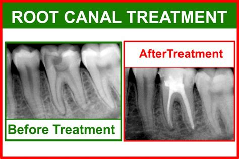 pros cons  tooth extractions intelligent dental
