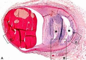Таблетки от простатита ципролет