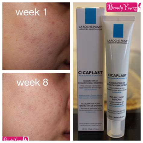 Biodermal acne creme review