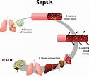 Sepsis, bacteremia and the risk of septic shock (life ...