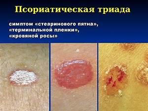 Зуд кожи при псориазе симптомы