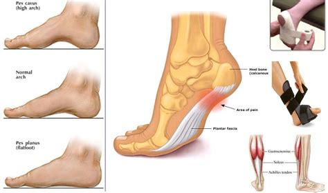 planters fasciitis treatment is plantar fasciitis ailing you sports fitness network