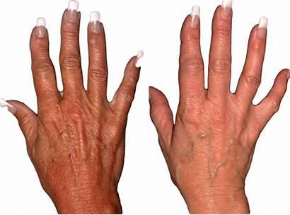 Hands Treatment Surgery Aging Collagen Between Damage