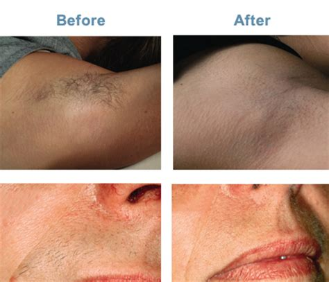 laser hair removal for light hair intense pulsed light treatment ipl beauty and ipl