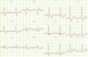 Right Bundle Branch Block EKG Examples