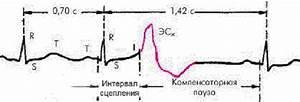 Экстрасистолия с гипертонией