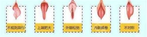 阴唇有多少形态 对性生活的影响竟然这么大 - 乐奇豆娱乐资讯