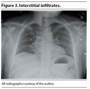 Chest radiography is uniformly recommended to establish ...