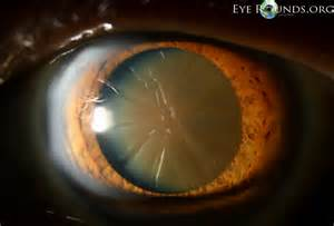 Brunescent cataracts are very advanced nuclear cataracts that have ...  Glaucoma Cataract
