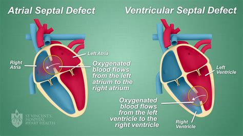 """Septal Defect """"hole In The Heart"""" Closures  St Vincent's"""