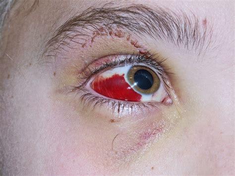 auge zuckt was tun notfall rotes auge was kann der hausarzt tun allgemeinarzt