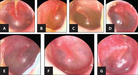 Improving The Diagnosis Of Acute Otitis Media Seeing Is
