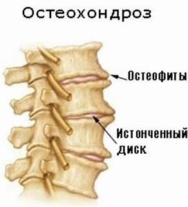 Полисегментарный остеохондроз грудного отдела лечение