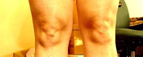 knee faces caught   wild gallery worldwideinterweb