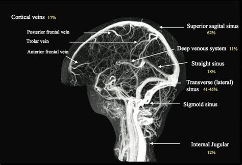 mri brain vascular anatomy mri scan images mri brain
