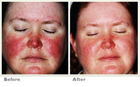 Before & After V Beam for Acne or Traumatic Scars