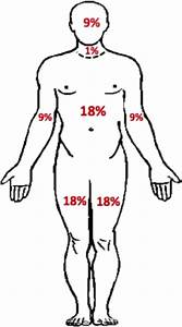 Practical Scheme For Determining Percentages Of Body Surface Area  Bsa