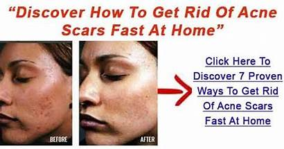Rid Scars Pimple Acne Marks Remove Face