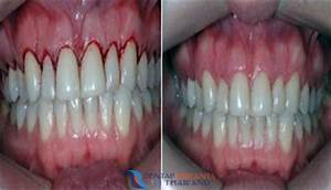 Periodontal Disease Treatment Before And After | www ...