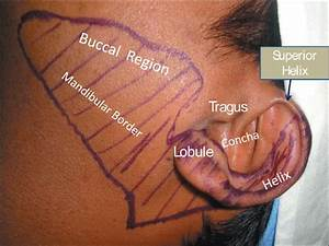 Posterior Auricular Nerve Block Related Keywords ...
