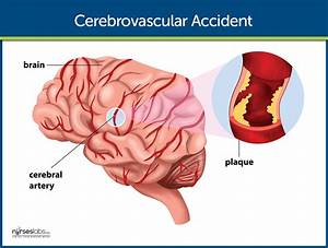 Cerebrovascular Accident  Stroke  Nursing Care And