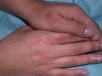 Fixed Drug Eruption (FDE) - Dermatology Advisor