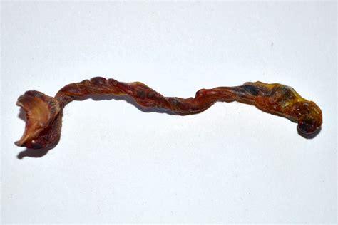Filedetached Umbilical Cord