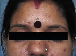 Journal of Cutaneous and Aesthetic Surgery (JCAS): Table ...