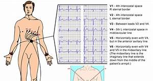 Ivline  A Quick Guide To Ecg